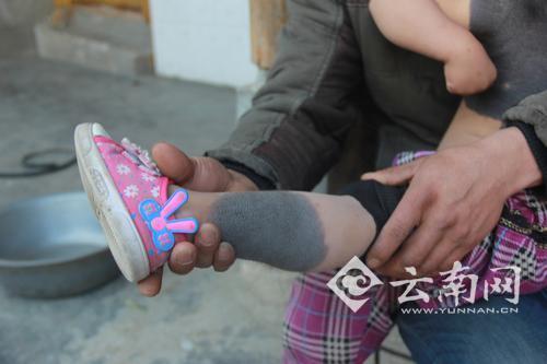 云南女童患罕见病 妈妈离家出走至今未归