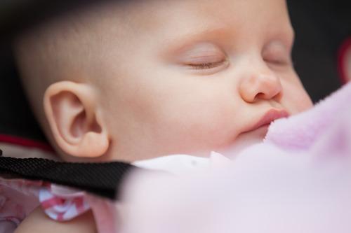 新生儿脑水肿严重吗