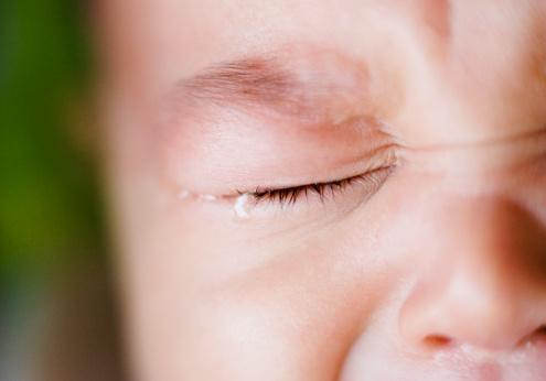 婴儿湿疹怎么预防