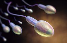 精子质量标准的常规检查 一共包含9个项目