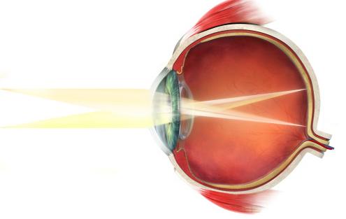 早产儿视网膜病变筛查指什么 如何预防病变