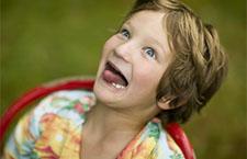 智障儿童的智障成因 先天后天大不同