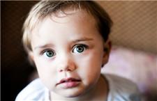 专家解答:宝宝眼睛红水肿是怎么回事