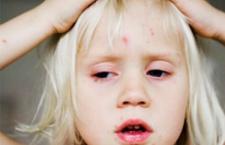 什么是水痘疫苗 水痘疫苗的接种注意事项介绍