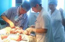 什么是剖腹产 术前准备有哪些