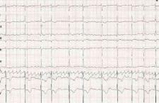 心电图检查作用 孕妈咪要进来了解下