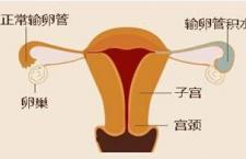 输卵管堵塞怎么治 需预防三点