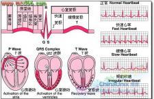 心电图检测方法 准妈妈了解