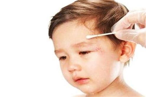 孩子意外损伤什么时候必须看医生