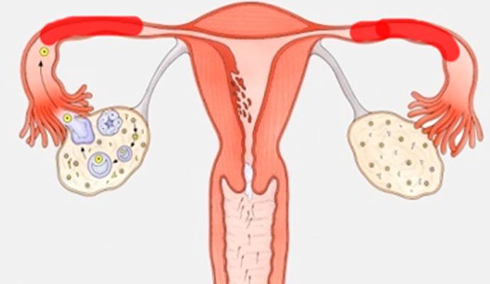 输卵管堵塞的预防