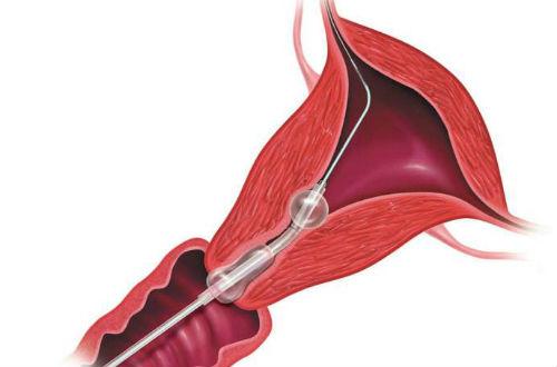 输卵管造影疼不疼