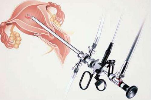 宫腔镜检查过程 小编为您解答