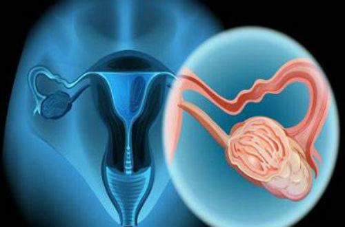 宫颈癌前病变的病因 看完您就懂