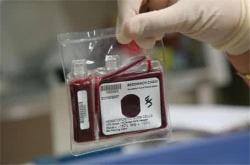 脐带血保存必须了解的事 请认真对待