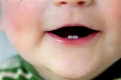 龋齿是什么